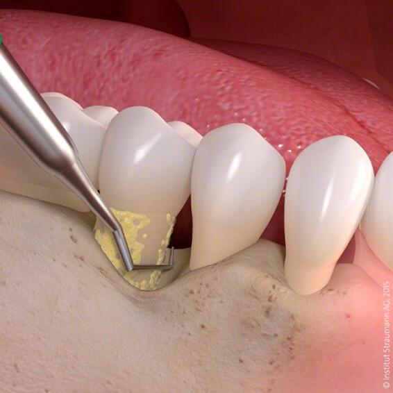 Loscher - Implantologie - Charlottenburg - Parodontalchirurgie